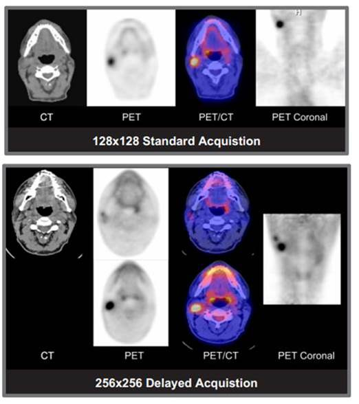 PET/CT at Affiliated PET Systems in Silver Spring, MD